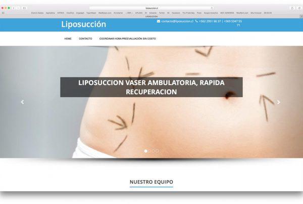 proyectos - liposuccion 600x403 - TRABAJOS