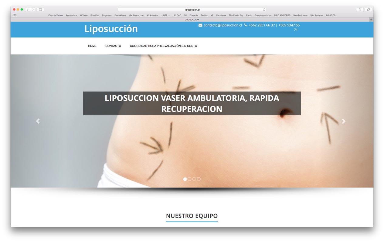 - liposuccion - Proyectos